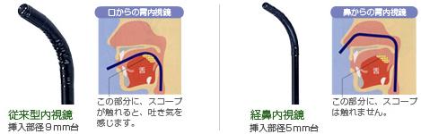 鼻からの胃内視鏡スコープ