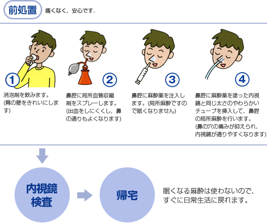 鼻からの胃内視鏡検査の手順